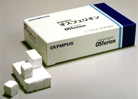 OSferion Bone Replacement Material