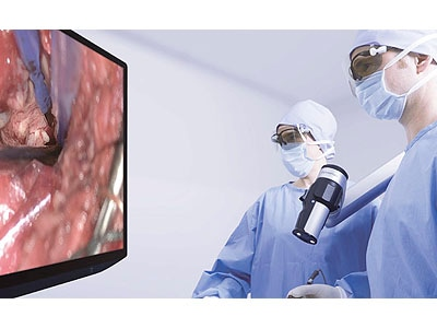 Launch Of Orbeye Surgical Microscope With 4k 3d